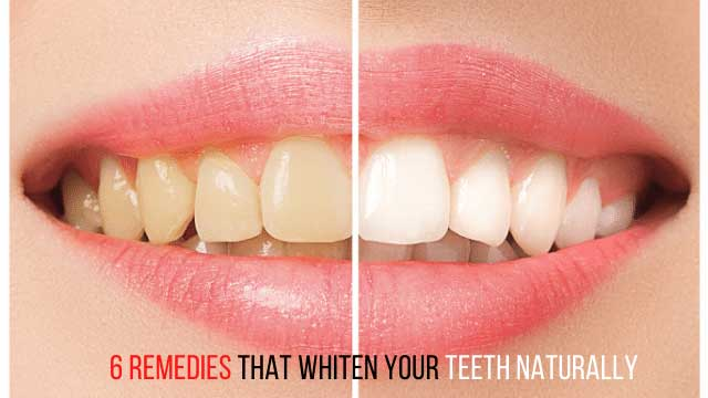 6 remedies that whiten your teeth naturally