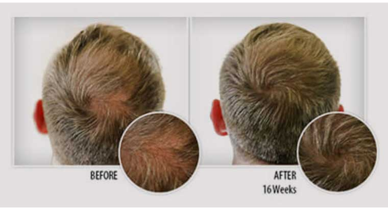 hair growth before after