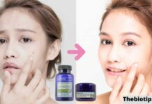 Skin Care Products For Acne